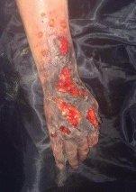 Forbrent arm gjort av gjesteforelser Jim