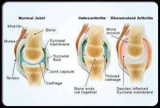 rheumatoid arthritis s4 normal affected joints