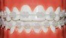 Cosmetic clear braces. Temecula, murrieta orthodontics