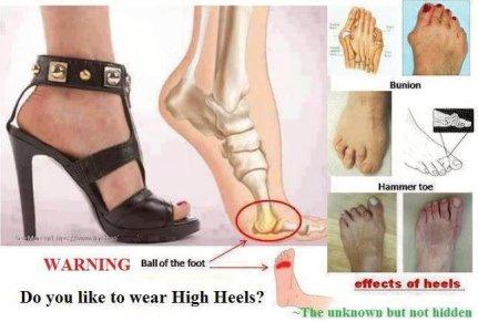 Foot deformities caused by high heels