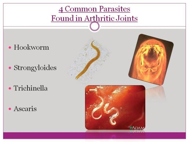 Common Parasites associated with Arthritis