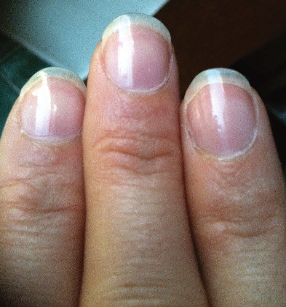 photo ongles après le polissoir.