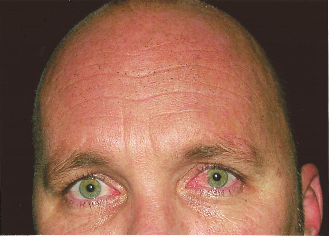 Close up forehead GSR crime scene photo