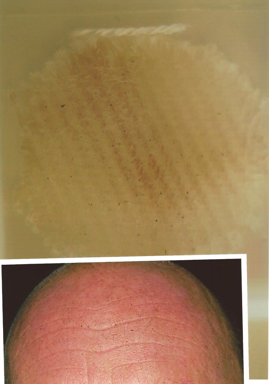 GSR patch and face match same substance crime scene photo