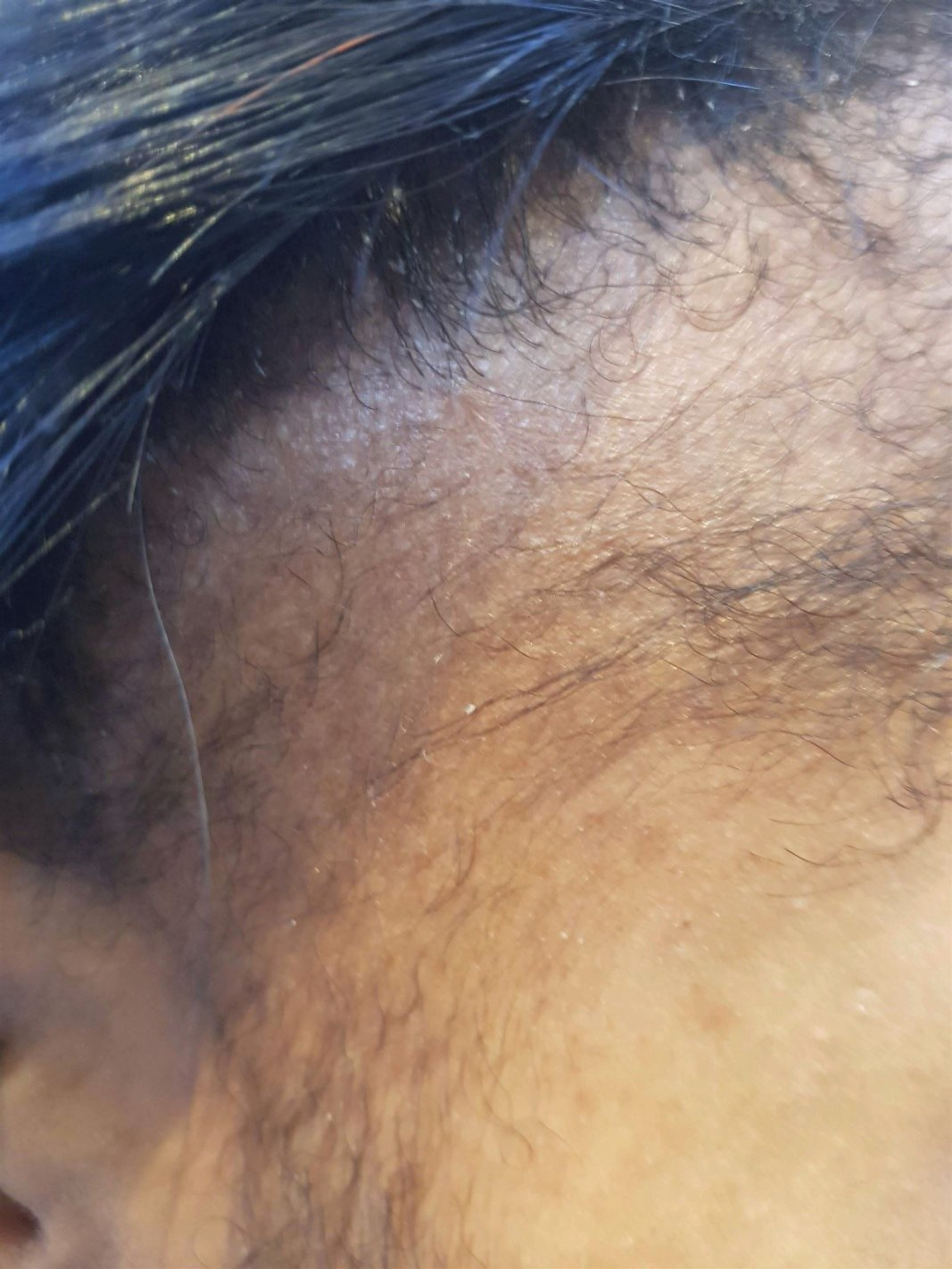 hair loss around the hair line before high frequency treatment