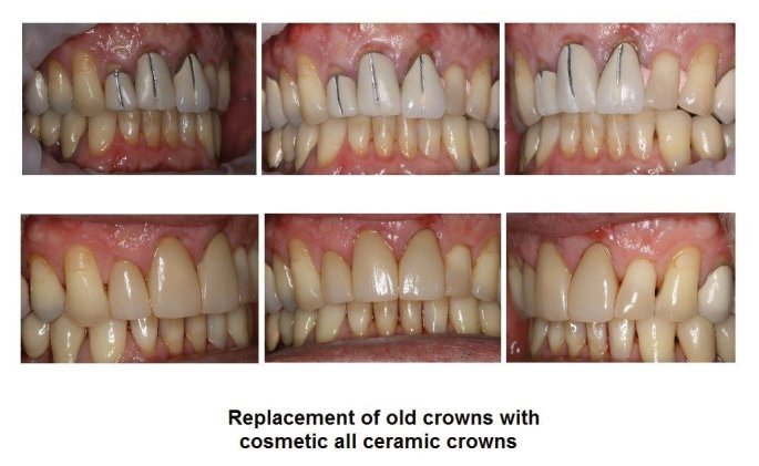 Cosmetic all ceramic crowns for a great smile