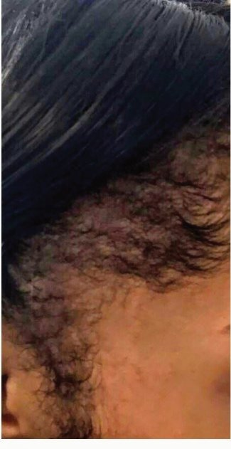 hair line hair loss  almost fully restored with high frequency treatment