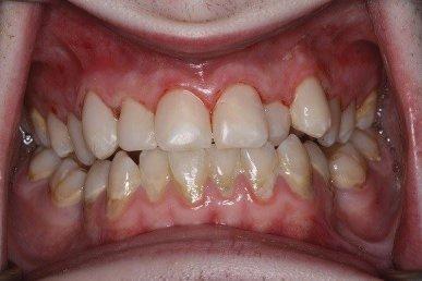 Cosmetic resin restoration