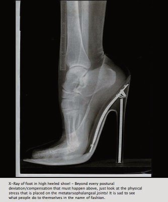 X-ray of highly stressed foot caused by high heeled shoe...